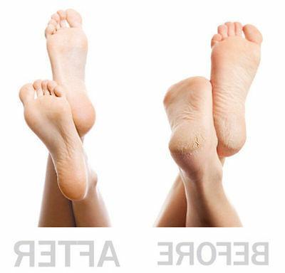 Portable Pedicure Foot Remover